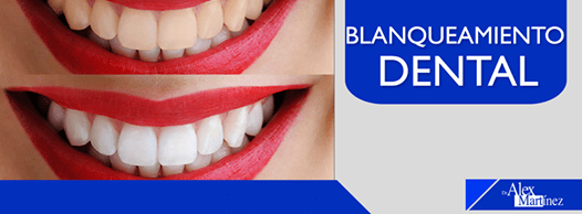 dr alex martinex blanqueamiento dental