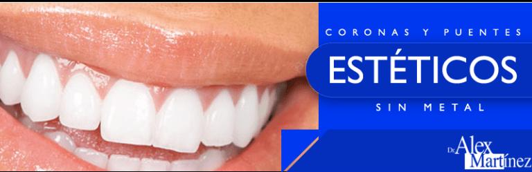 protesis dentales dr alex martinez