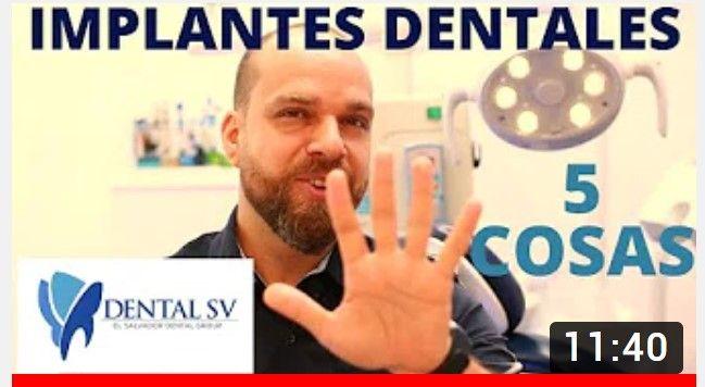 implantes dentales cinco cosas
