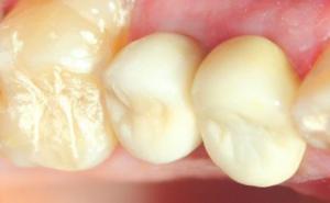 corona de porcelana sobre implante al centro 20140829 1197397166
