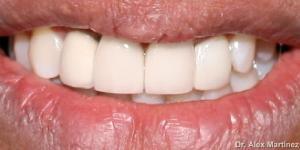 rehabilitacin de frente esttico con implante 20090517 2058231569