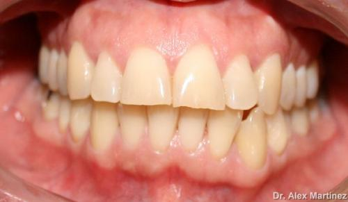 Blanqueamiento dental laser en 1 cita