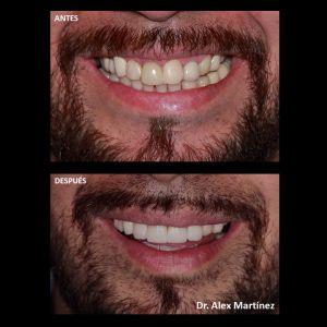 Transformación de Sonrisa-2